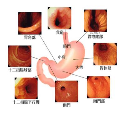 胃透視と胃カメラの違い|どちらの検査を受ければよいのか?