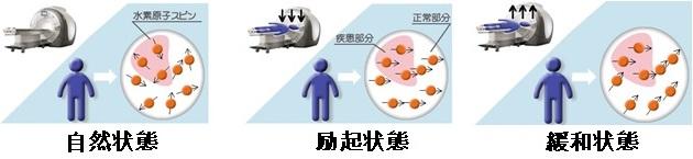 CT検査とMRI検査の違い 撮影原理・画像・検査費用・検査のながれetc