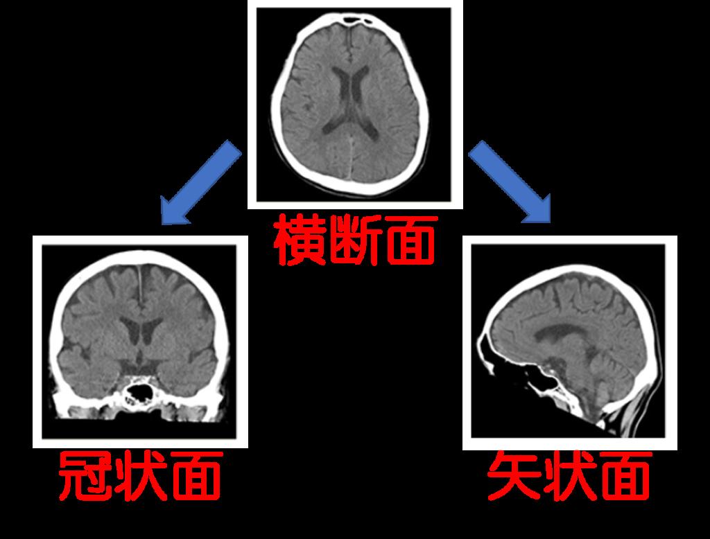CT検査をわかりやすく解説|検査のながれ・分かる病気・被ばく量・検査時間・検査費用etc