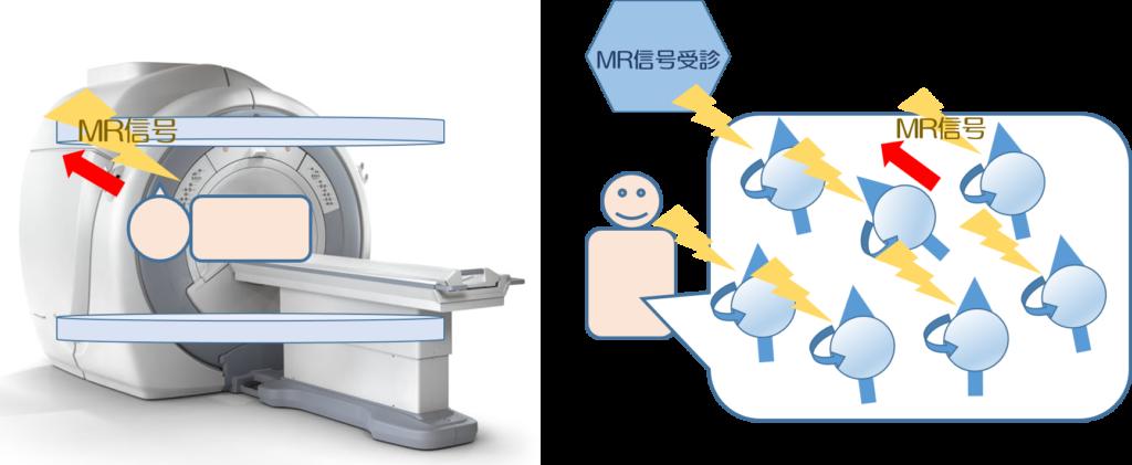 MRI検査をわかりやすく解説|検査のながれ・分かる病気・検査時間・検査費用etc